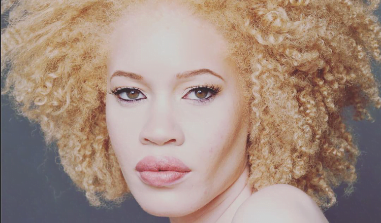 Overview of albinism