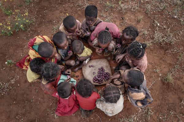 madagascar-malnutrition